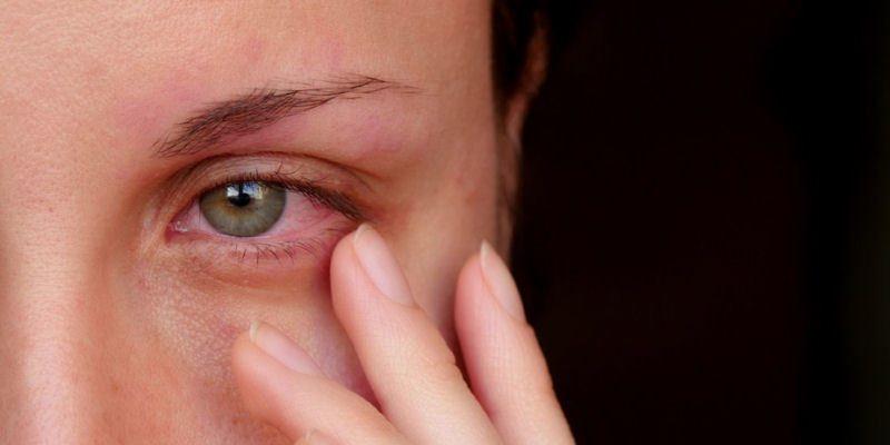 Hautirritationen ums Auge Nebenwirkungen