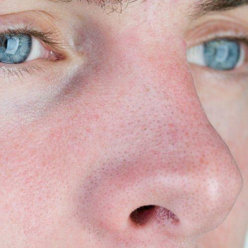 Entstehung Mitesser Nase Poren
