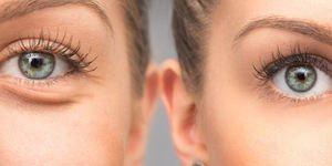 Entstehung von Traenensaecken und Augenringen