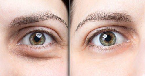 Wirkung von Cremes gegen Augenringe und Traenensaecke