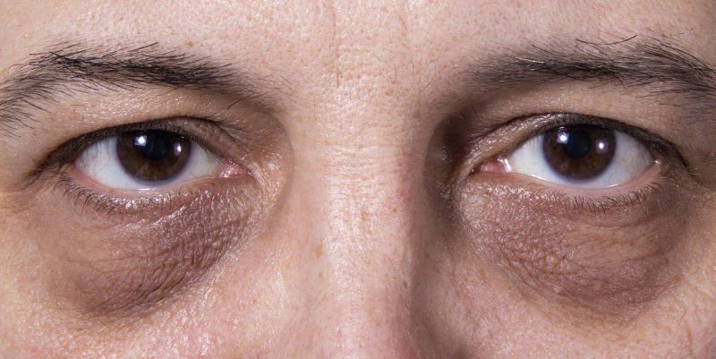 Starke und dunkle Augenringe Traenensaecke beim Mann
