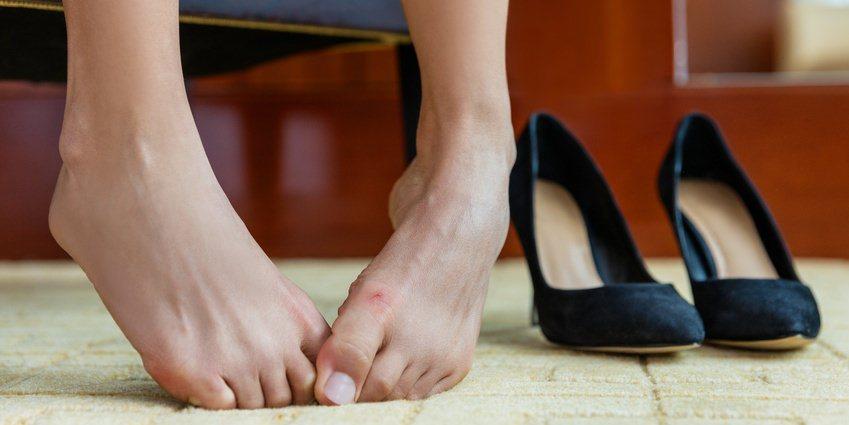 Hallux Valgus – Ist Die Fehlstellung Ein Charakteristisches Frauenproblem