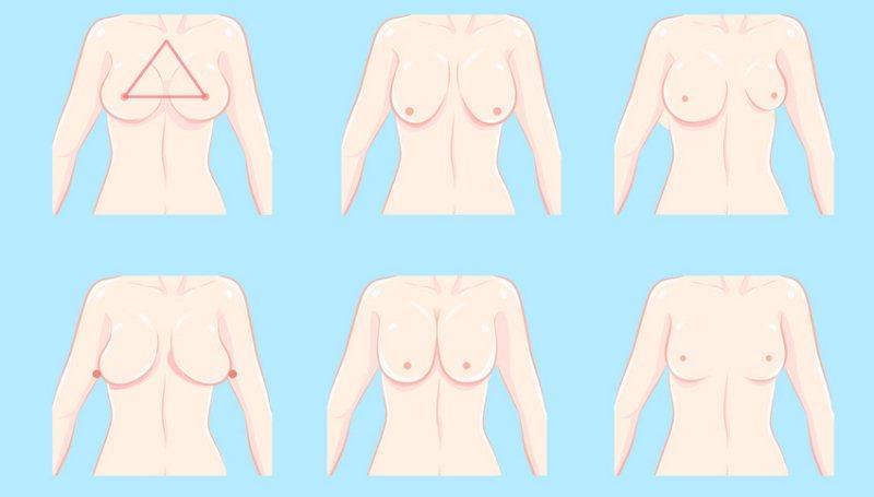 verschiedene Formen der weiblichen Brust