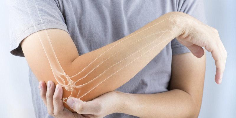 CBD bei rheumatoider Arthritis