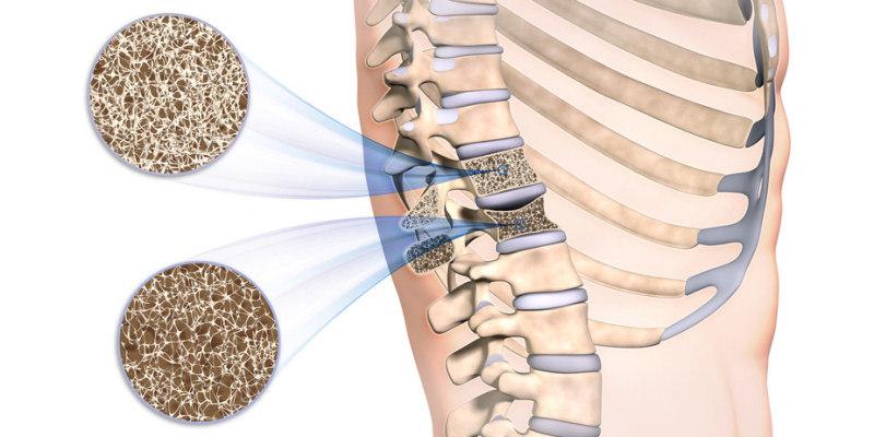 Osteoporose Bestimmung der Knochendichte Rückenwirbel